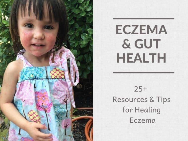 Baby Girl with Eczeama