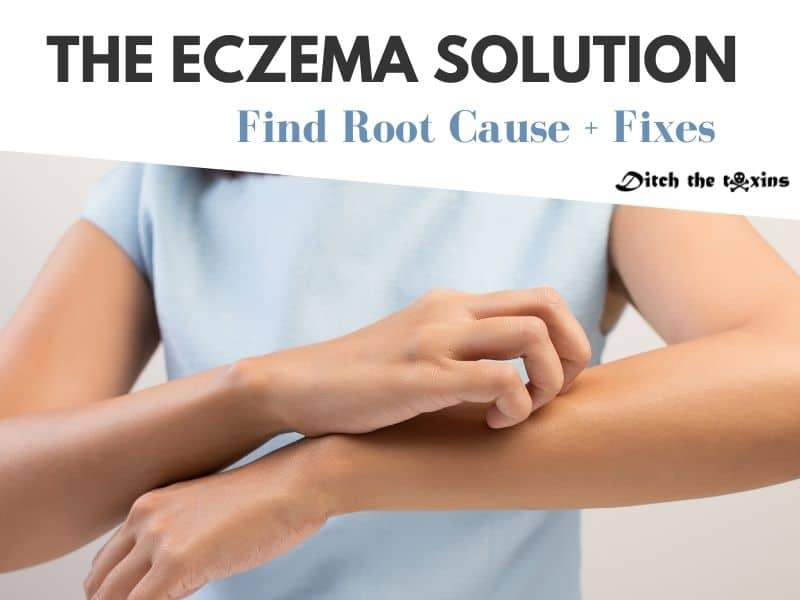 The Eczema and Gut Health Connection